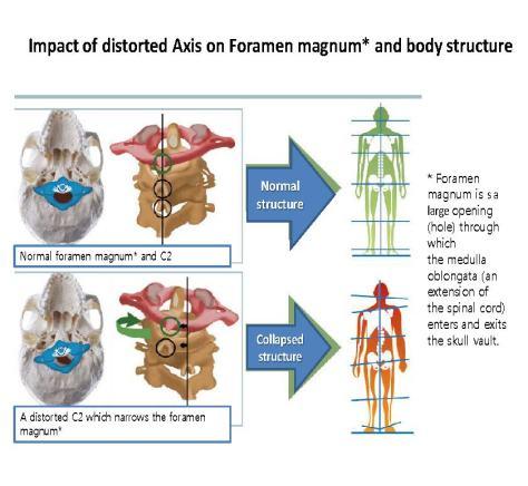 foramen magnum